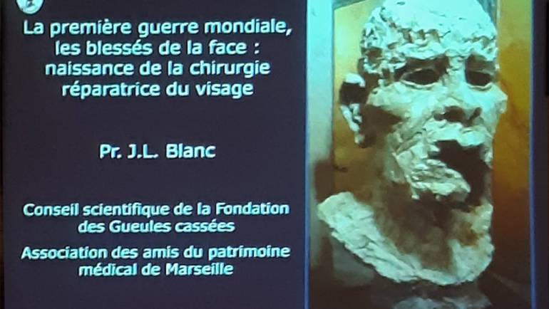 Retour sur la conférence du 5 octobre «Les Blessés au visage de la première Guerre Mondiale» par le professeur J-L BLANC